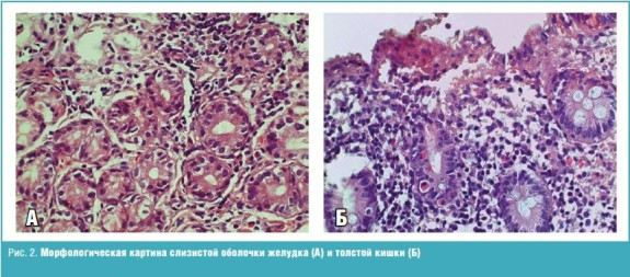 Морфологическая картинка слизистой оболочки желудка (А) и толстой кишки (Б)