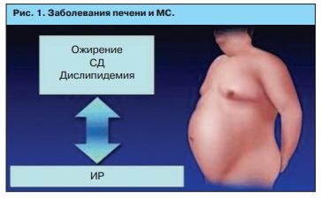 Заболевания печени и МС