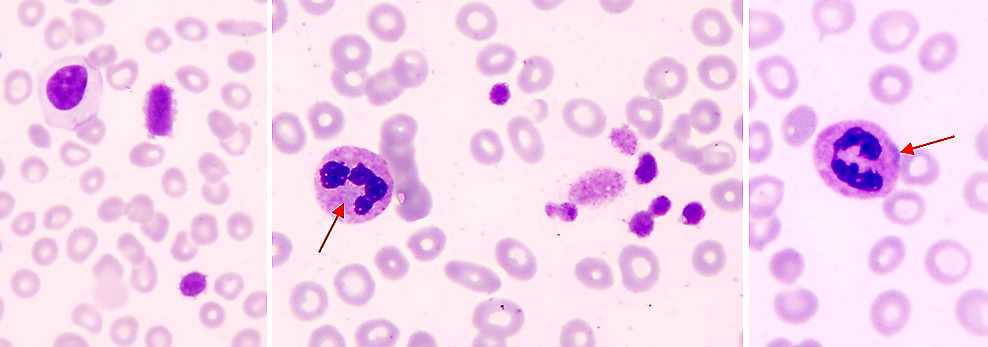 thrombocytopenia research Thrombocytopenia is a blood disorder in which there are too few platelets in the blood this results in problems with blood clotting learn about.