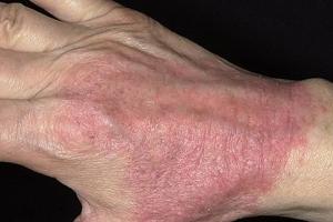 Что разрешено есть при атопическом дерматите