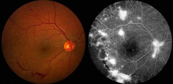 ретинопатия-3