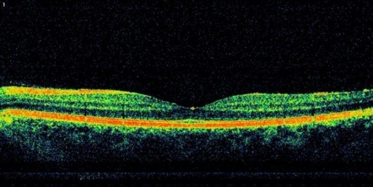 ретинопатия-4