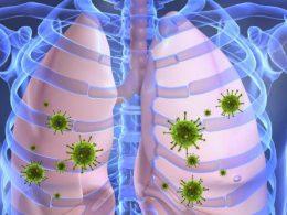 Современные подходы в лечении пневмонии: этиология и патогенез, диагностика и антибиотикотерапия. Часть 1 (в 4 частях)