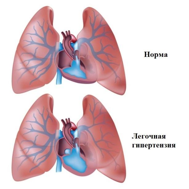 легочная гипертензия