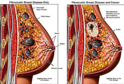 Фиброзно-кистозная мастопатия (ФКМ) молочной железы