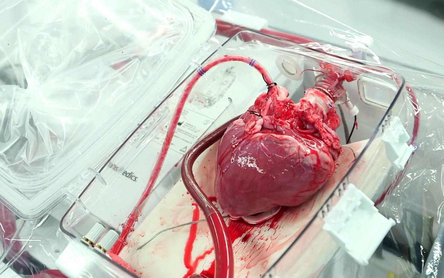 """Благодаря аппарату """"сердце в коробке"""" не происходит отмирание клеток, так как кровь вместе с кислородом постоянно циркулирует в нем"""