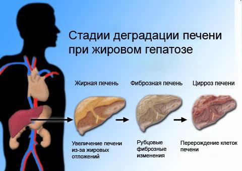 fatty-liver-cirrhosis_2