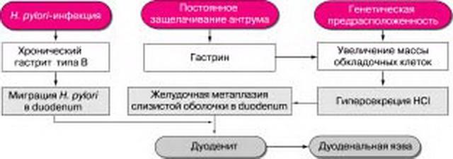 Предположительная роль H. pylori в развитии дуоденальной язвы