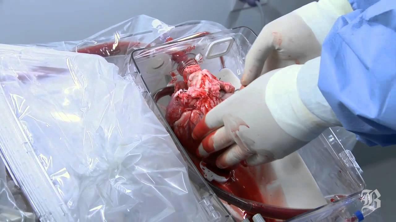 После запуска аппарата сердце вновь начинает самостоятельно сокращаться и становится пригодным для пересадки