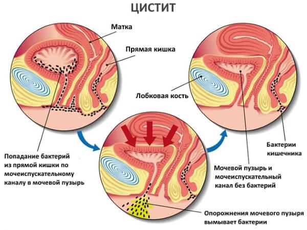 cystitis_1