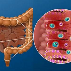 Связь микрофлоры кишечника с развитием атопического дерматита у детей