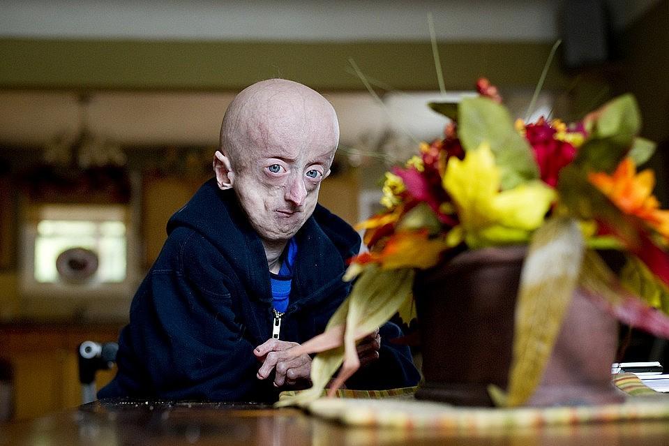 progeriya