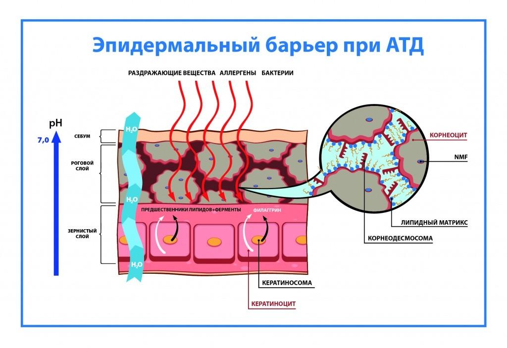 Атопический дерматит – механизм развития и тактика