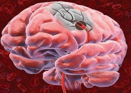Ишемический инсульт (ИИ) – острое нарушение мозгового кровообращения вследствие нарушения кровотока в головном мозге