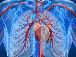 Легочная гипертензия, вызванная патологией левых отделов сердца–Часть3