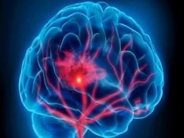 Мальформация сосудов головного мозга.