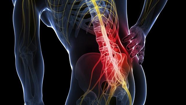 Иглотерапия при остеохондрозе шейного