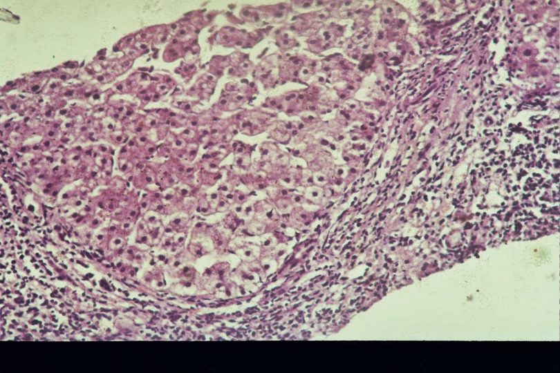 Рис. 1 - Некровоспалительная активность и фиброзные изменения при хроническом гепатите с переходом в цирроз до лечения