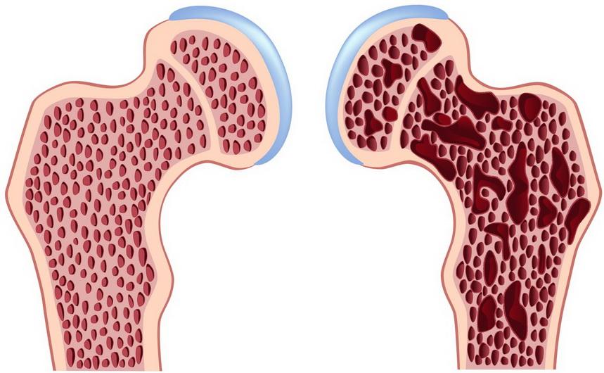 лечение остеопороза, клинические рекомендации_медпросвіта