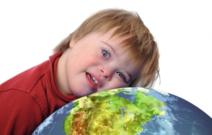 ребенок с синдромом дауна_медпросвита