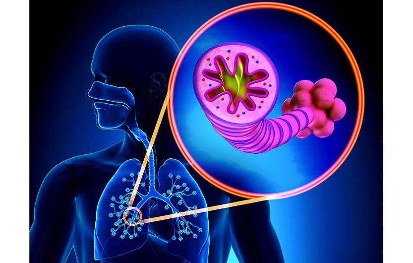 хронической обструктивной болезни легких_медпросвіта