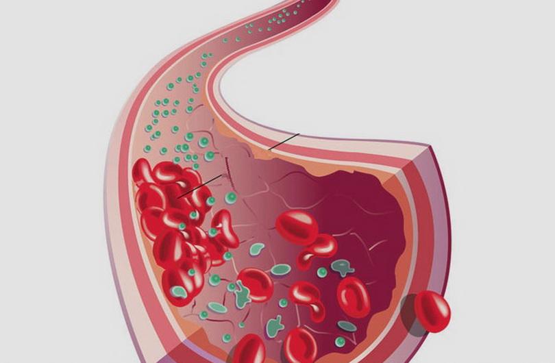 Венозные тромбозы_медпросвіта