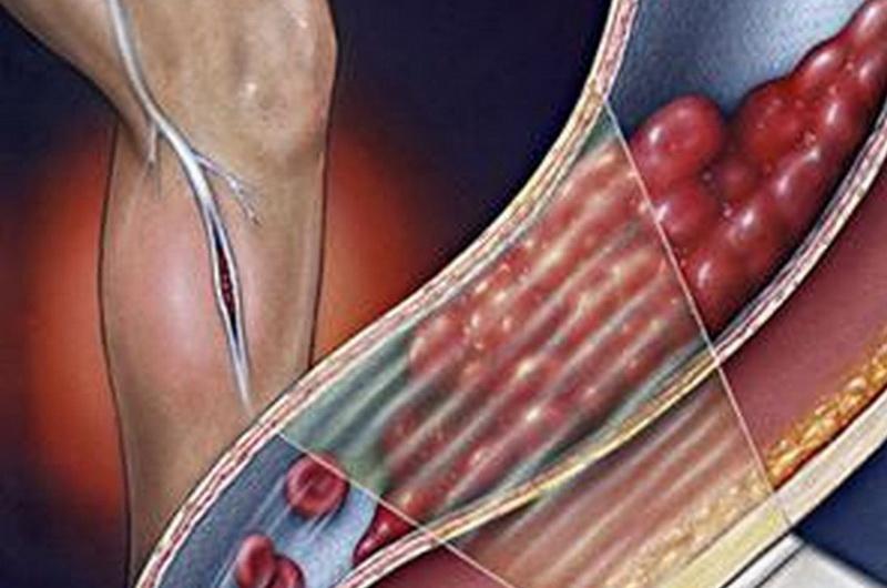 Антикоагулянтная терапия при венозном тромбозе