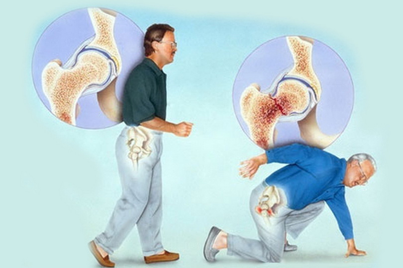 перелом при остеопорозе_медпросвита