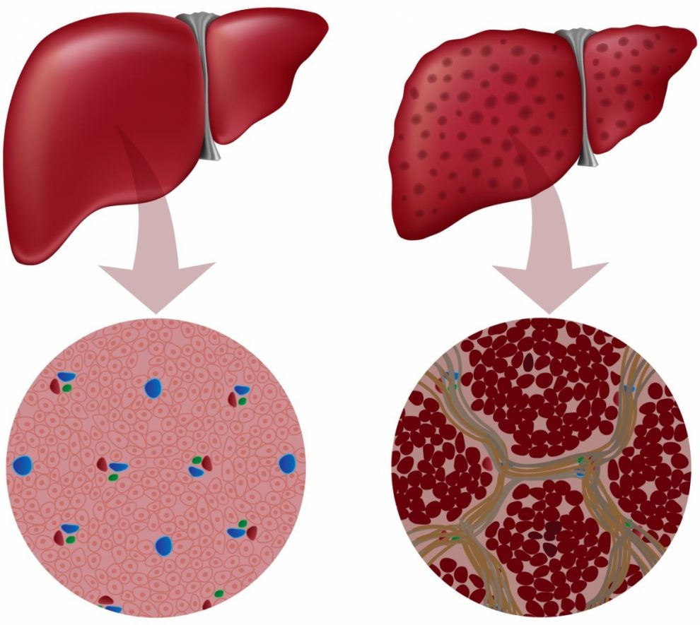 УЗИ – предпочтительный метод первой линии диагностики НАЖБП, поскольку оно обеспечивает дополнительную диагностическую информацию
