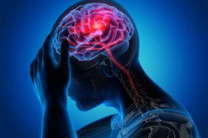 Заболевание головного мозга - МедПросвита